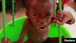 Истощенный сомалийский ребенок, эвакуированный в Эфиопию