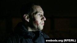 Алесь Кіркевіч, якога нападнікі ўдарылі драўлянай бітай па скроні