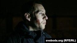 Зьбіты ў ноч на 23 лютага актывіст Алесь Кіркевіч