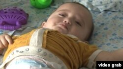 A child being treated for a birth defect at a hospital in Tajikistan's Khatlon region.
