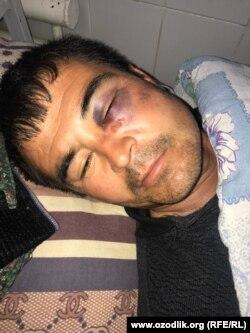 Qahramon Temirov prokurorlar kaltaklagani yuzasidan prezidentga arz qilgan.