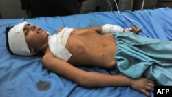Поранений внаслідок вибуху хлопчик у лікарні Джалалабада