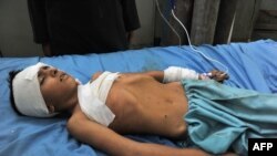 A wounded boy receives treatment at a hospital in Jalalabad after an explosion in the Ghani Khel district of Nangarhar province, which killed at least 14 people.