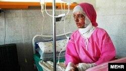یکی از قربانیان اسیدپاشی در اصفهان