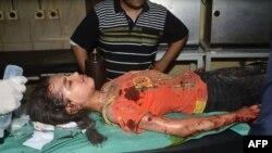 Ranjena sirijska djevojčica u Alepu, 27. maja 2016.