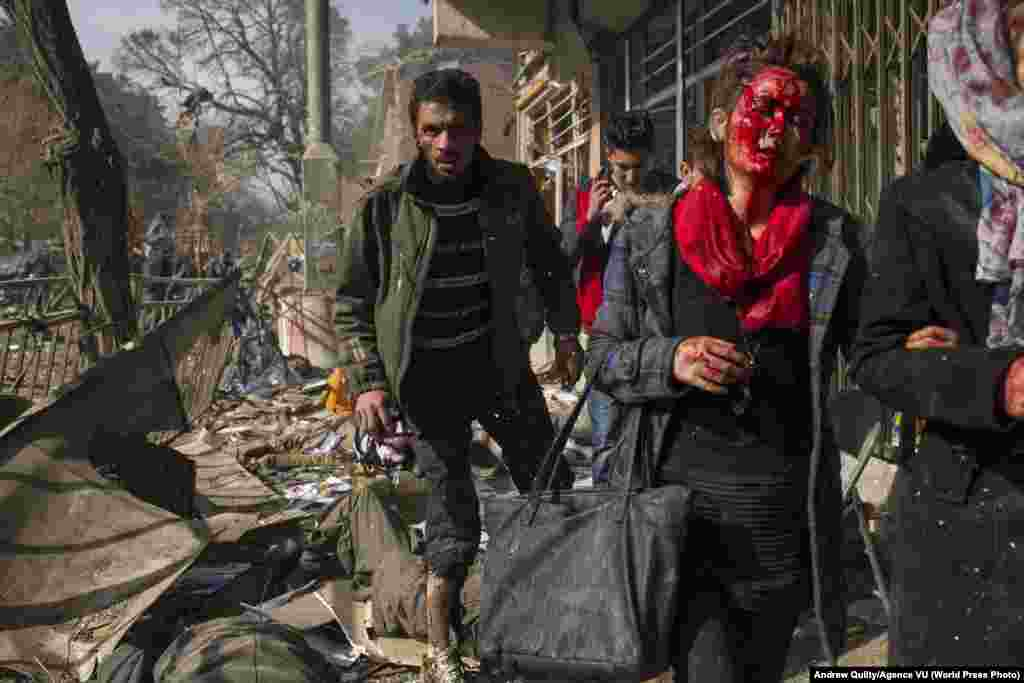 Injured men and women step over a critically wounded man at the scene of a bomb blast in central Kabul, Afghanistan. The bomb is believed to have been carried by an ambulance, the driver of which was able to penetrate security on a well-guarded road leading to the European Union delegation building, the Swedish and Dutch Embassies, the former Interior Ministry building and the office of the Afghan High Peace Council. Taliban militants claimed responsibility for the attack which killed at least 95 people. Spot News: Third Prize, Stories - Andrew Quilty, Agence VU