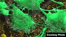 Qelizat kancerogjene (Ilustrim)