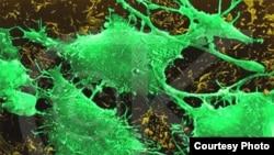 یک سلول سرطانی