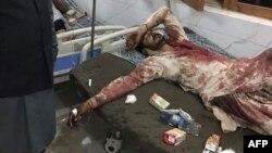 Pakistan: YD-nyň hüjüminde ölenleriň sany 80 adama ýetdi