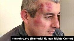 "Глава отделения ""Мемориала"" в Дагестане Сиражутдин Дациев после избиения"
