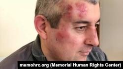 "Сиражутдин Дациев после избиения (фото предоставлено ""Мемориалом"")"