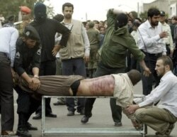 شلاق؛ «شکنجه» مصرح در قانون؟