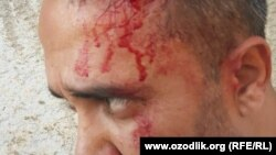 Отабек Джураев связывает нападение со своей блогерской деятельностью.