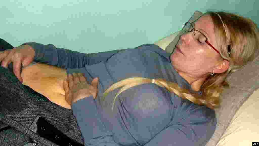 фотографии с травмами Тимошенко, нанесенными якобы сотрудниками исправительного учреждения, уже появились в Интернете.