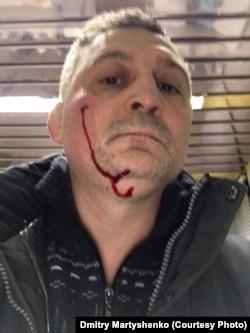 Дмитрий Мартышенко после нападения