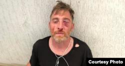 Lekso Lashkarava after being beaten.