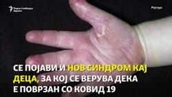 КОВИД 19 можеби ќе остане засекогаш, чудна инфекција напаѓа деца