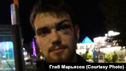 Активист Глеб Марьясов после нападения неизвестных