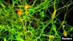 Зерттеу институтында адамның плюрипотенттік жасушаларынан алынған дофаминергиттік нейрондар. Жапония, Киото университеті.
