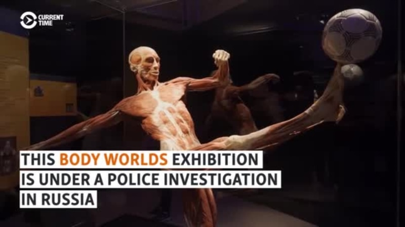 'We May Have Public Dismemberments': Body Worlds Exhibition Under Attack In Moscow
