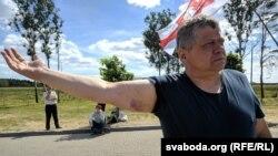 Аляксей Туровіч у Курапатах. Паказвае сіняк на руцэ пасьля канфлікту з байкерамі напярэдадні. 10 чэрвеня 2018 году
