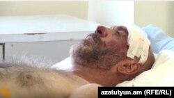 Armenia- Karabakh war veteran Smbat Hakobyan in hospital, Yerevan, 21Sept2015