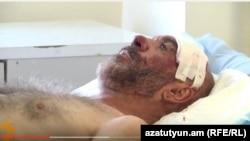 Ветеран Карабахской войны Смбат Акопян в больнице, 21 сентября 2015 г.