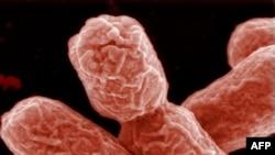 Жұқпалы ішек дертін қоздыратын E. coli бактериясы.