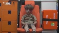 Кадры з скрываўленым хлопчыкам з Алепа ўзрушылі сьвет