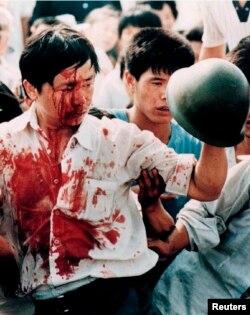 4 июня. Окровавленный демонстрант держит военную каску.