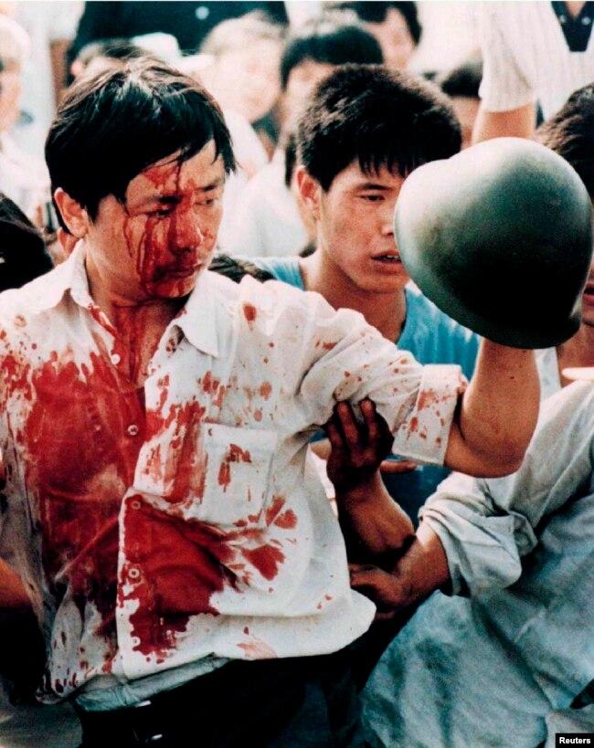 4 июня. Окровавленный демонстрант держит военную каску