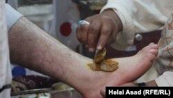 یک شکسته بند حین درمان برآمدگی پای یک باشنده کابل. November 3 2019