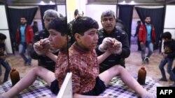 Dijete u bolnici nakon napada hemijskim oružjem iz vazduha, Sirija