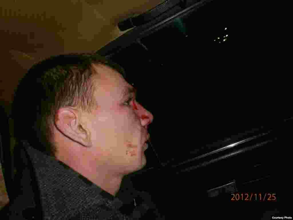 избитый полицейскими