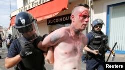 An injured man is led away by French police in Marseille following clashes between Russia and England supporters after a 1-1 draw in Marseille on June 11.