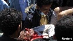 Раненый участник акций протеста в Йемене