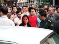 An Iranian woman purportedly bloodied by police over her