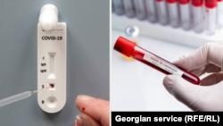Koronavirus testi