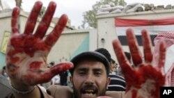 Участник протестов показывает окровавленные от столкновений с правительственными войсками руки. Сана, 18 сентября 2011 года.