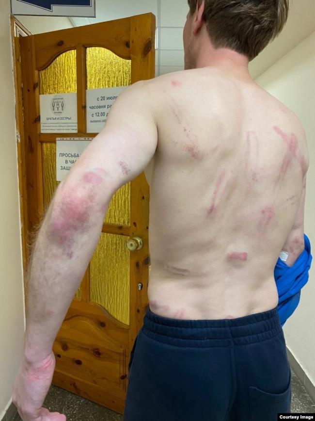 Участник протеста показывает ранения, нанесенные ему в СИЗО