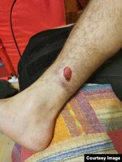 Рана на правой ноге