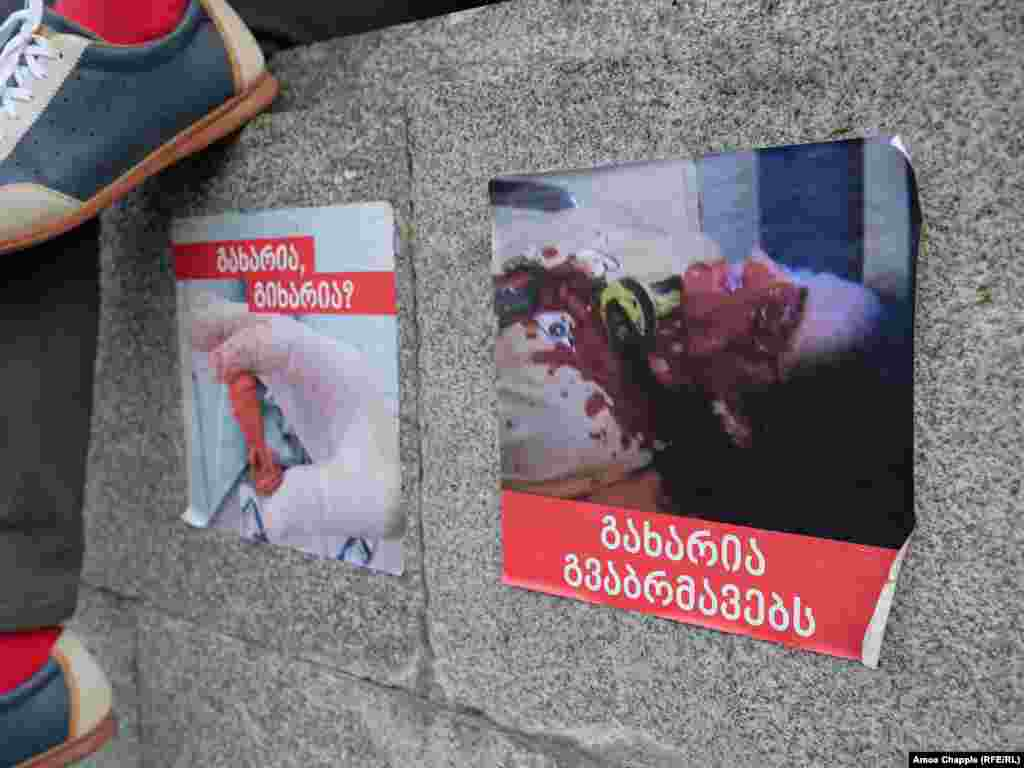 Posters in front of the parliament building in Tbilisi. Protesters say the image on the right shows a demonstrator who was struck in the eye with a rubber bullet on the evening of June 20.