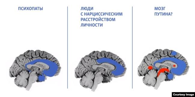"""Иллюстрации к докладу """"Внутри путинского мозга"""""""