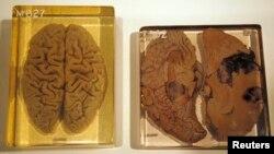 İllüstrasiya. Beyin