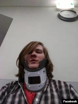 Федор Ципилев после нападения в гей-клубе