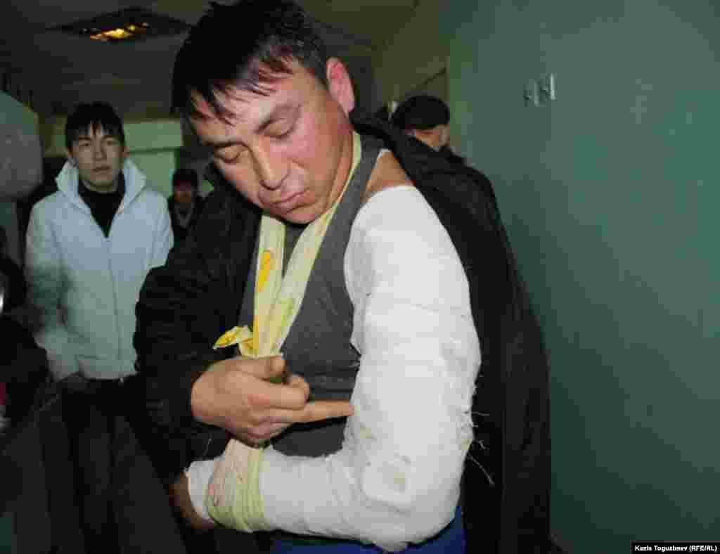 Житель Жанаозена Аманжол Ажигитов, находящийся в больнице Актау, показывает забинтованную руку, раздробленную, по его словам, от автоматной пули. Актау, 18 декабря.
