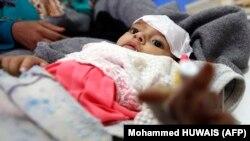 یک کودک یمنی مبتلا به وبا (عکس از آرشیو)