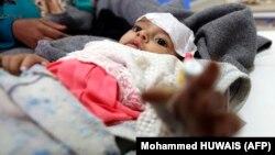 Një fëmijë në Jemen që dyshohet se është prekur nga kolera