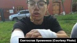 Обожженный в полицейской машине несовершеннолетний Максим Кокорин