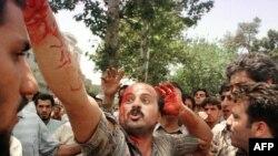 Iran. Xəsarət alan tələbə etirazlar zamanı. 10 iyul 1999